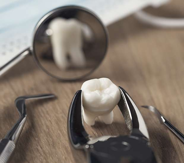 San Francisco When Is a Tooth Extraction Necessary